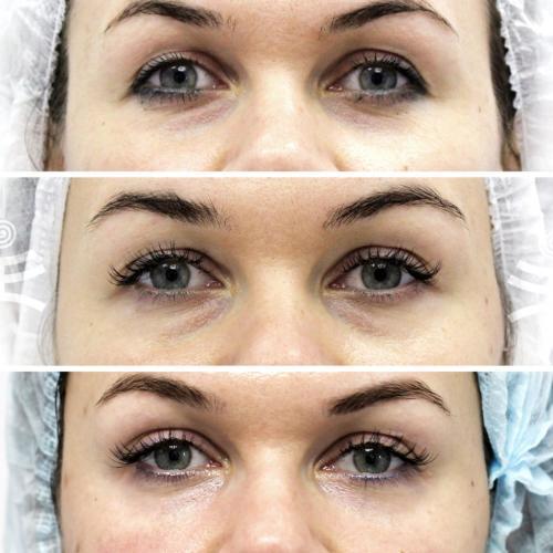 Морщины под глазами, как избавиться посл.  Все способы избавиться от морщин вокруг глаз