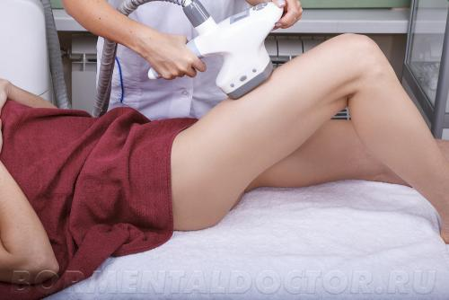 Процедура LPG массажа. Эффект после LPG массажа